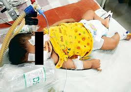 baby afreen, Bangalore, baby afreen is death